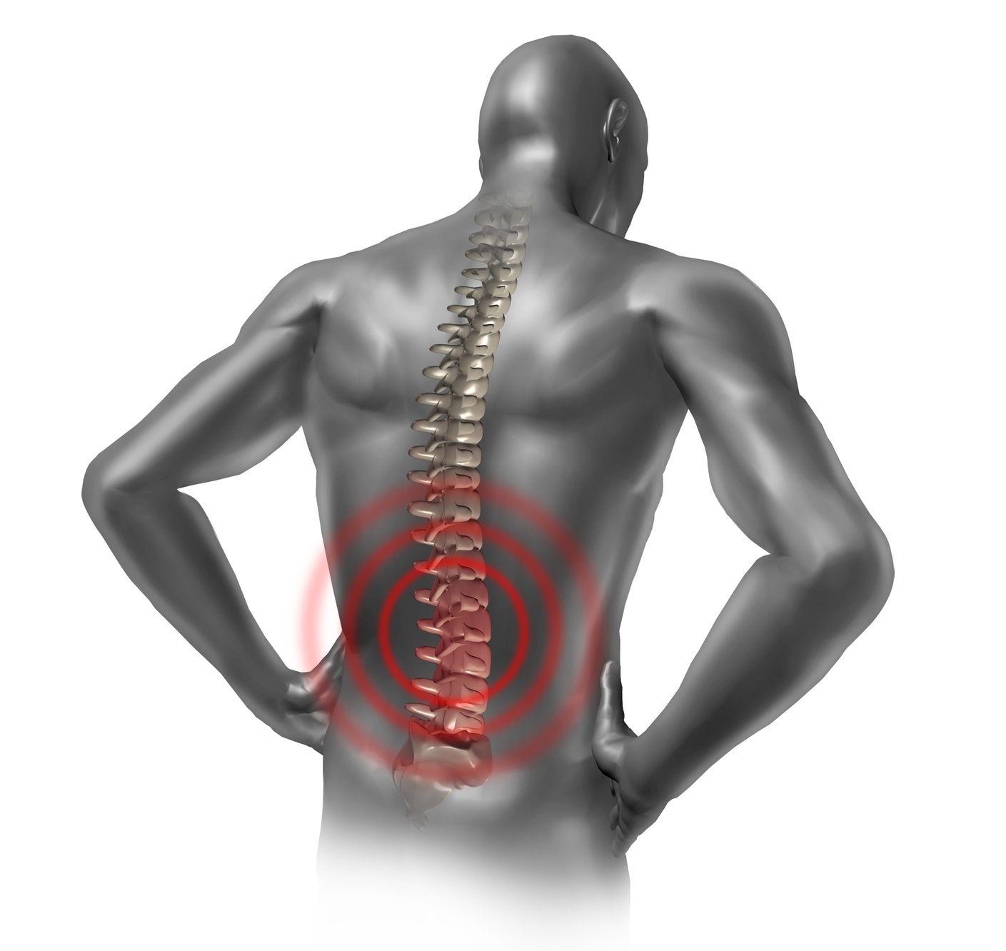 Lombalgie, pathologie touchant la partie inférieure du dos